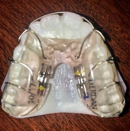 Removable Anterior Growth Guidance Appliance at 95133 dentist office