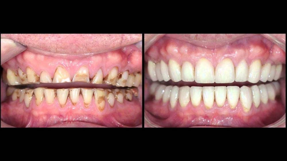 Before and After Teeth | Advanced Dentistry by Design