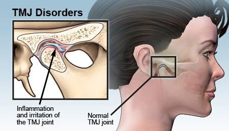 TMJ Disorder | Advanced Dentistry by Design