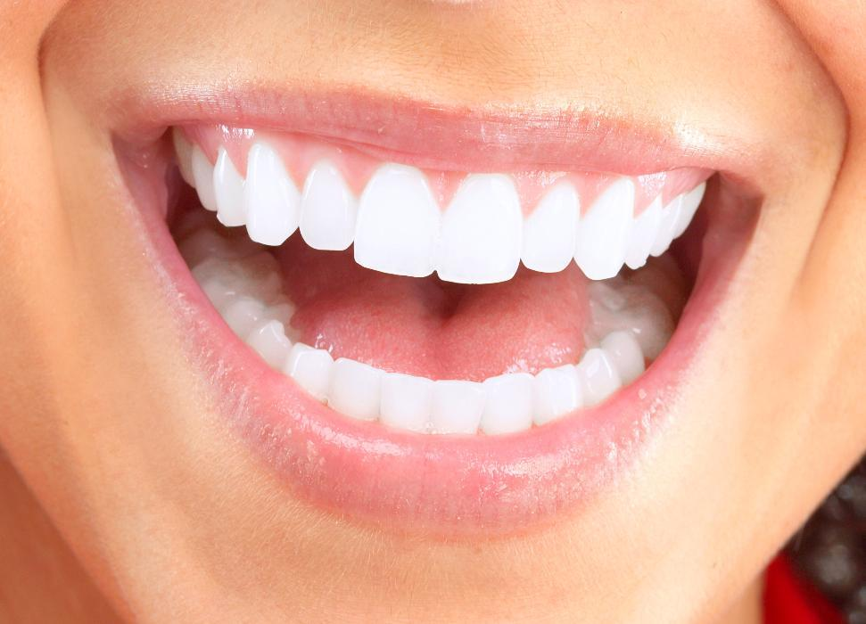 Close up of dental patients smile after teeth whitening in San Jose CA
