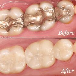 Dental Crowns | Advanced Dentistry by Design