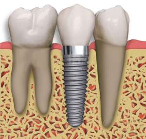 Dental Implants | Advanced Dentistry by Design