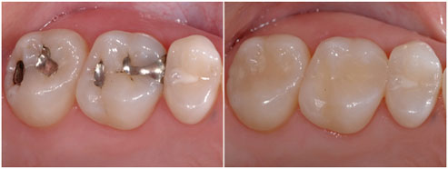 Close up of teeth with metal fillings and after with tooth colored fillings in San Jose CA