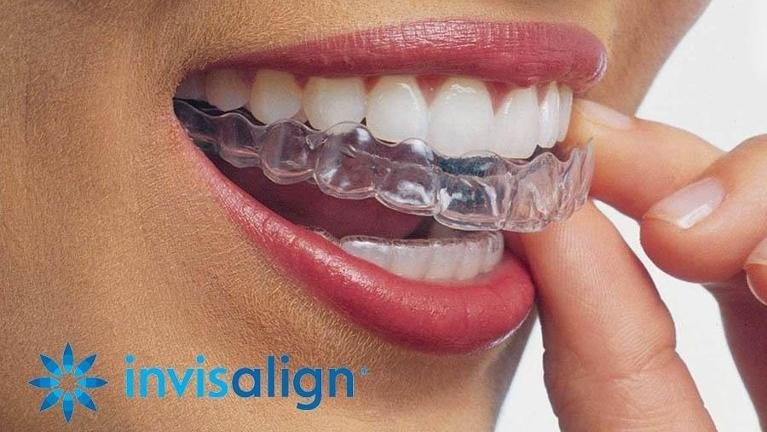 Invisalign | Advanced Dentistry by Design