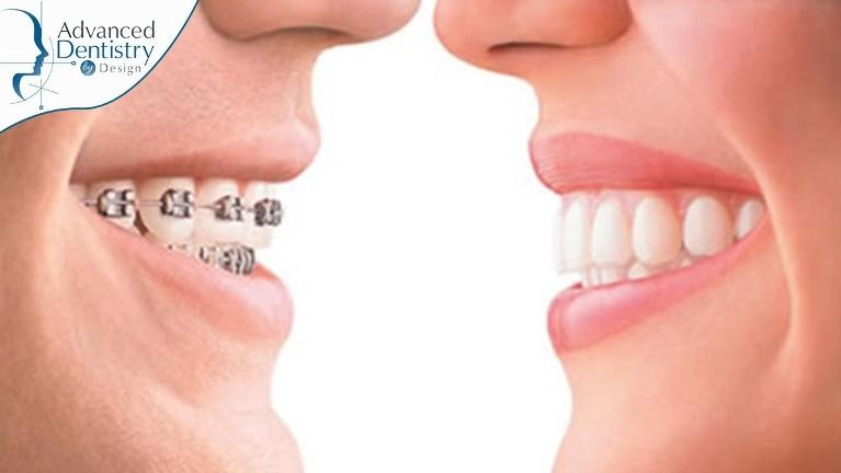 Not-Just-Pretty-Smile-Other-Medical-Benefits-Of-Braces