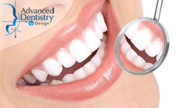 The-Benefits-of-Getting-a-Full-Mouth-Rehabilitation-Treatment