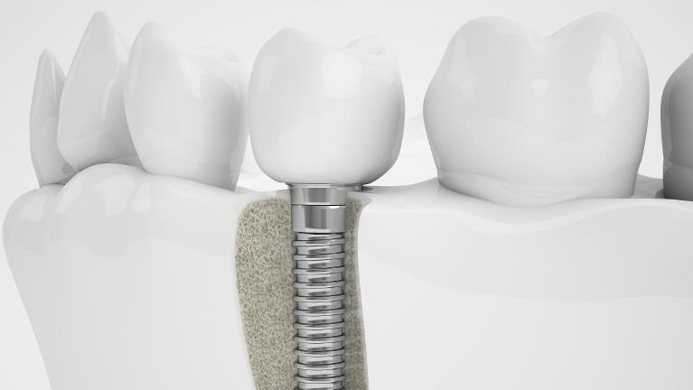 Dental Implants Patient | Advanced Dentistry by Design