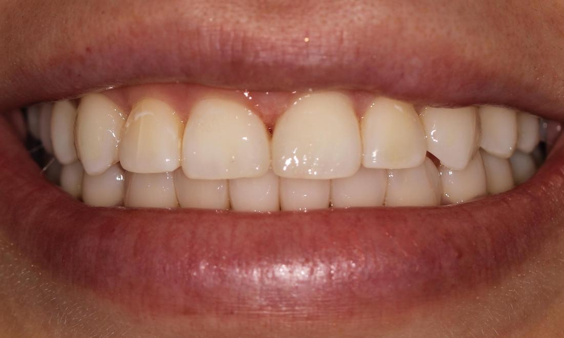 Closing Gaps with Tooth-Colored Fillings