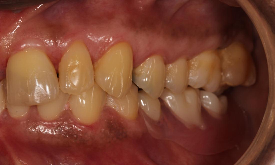 Partial Dentures Patient After | Advanced Dentistry by Design