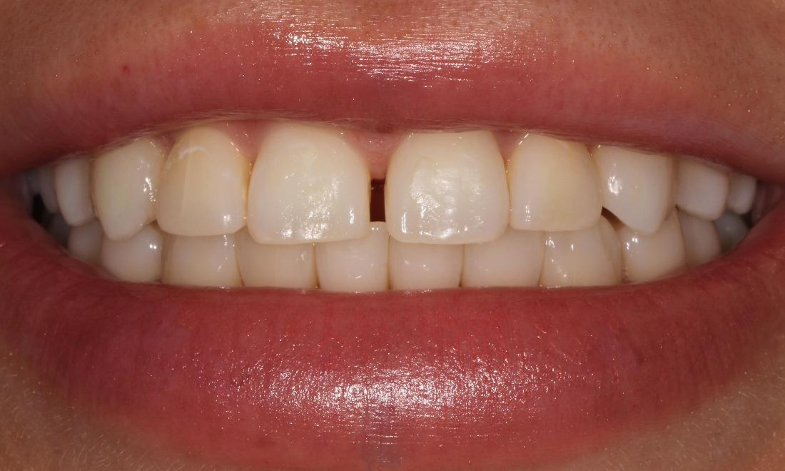 Tooth-colored Fillings | Advanced Dentistry by Design