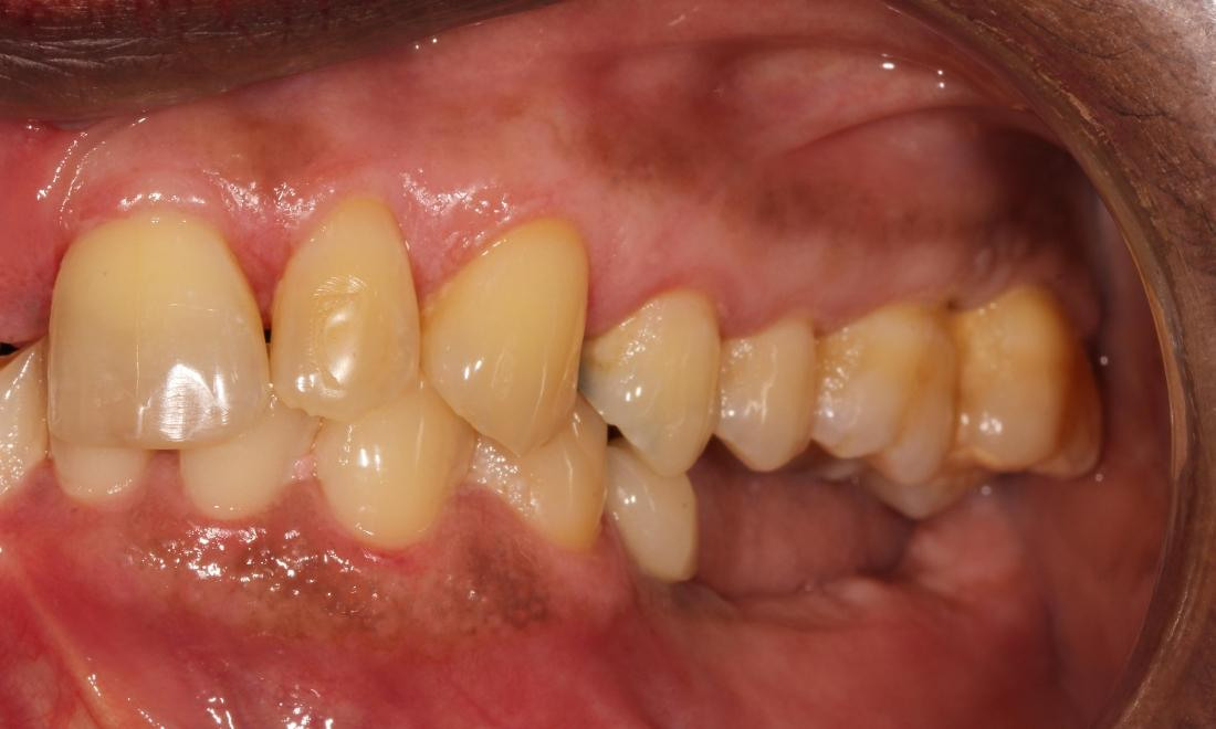 Partial Dentures Patient Before | Advanced Dentistry by Design