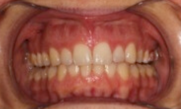 Expansion-and-Alignment-to-Create-a-Wide-Healthy-Smile-After-Image
