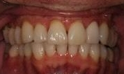 Fixing-a-Crowded-Smile-and-Deep-Bite-With-Invisalign-After-Image