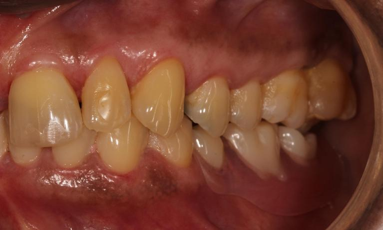Metal-free-Invisible-Partial-Dentures-After-Image