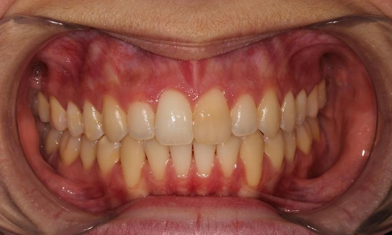 Straightening-Teeth-with-Invisalign-After-Image
