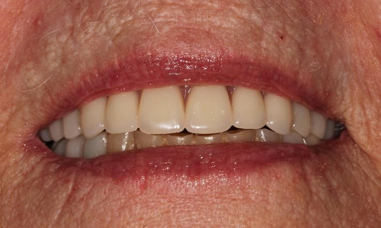 Upper-Full-Denture-and-Lower-Metal-free-partial-and-crowns-After-Image