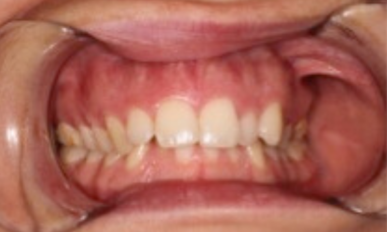 Expansion-and-Alignment-to-Create-a-Wide-Healthy-Smile-Before-Image