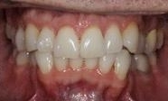 Fixing-a-Crowded-Smile-and-Deep-Bite-With-Invisalign-Before-Image